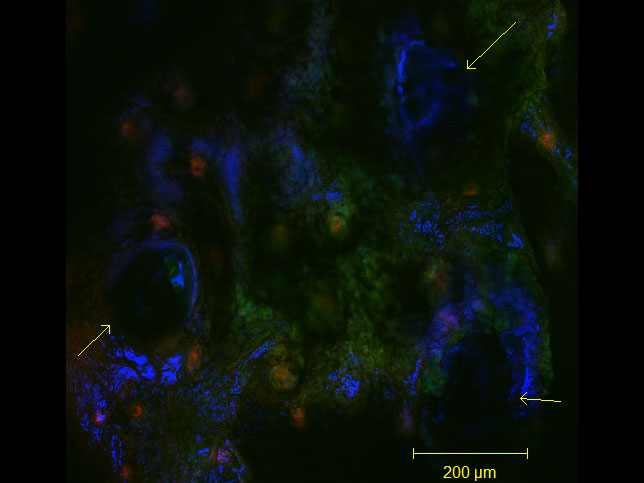 Delivery of sucrose/virus-tipped microneedles into the ears of transgenic mice. Yellow arrows indicate microneedle penetration pits/points. color key--blue: sucrose MN tips (Alexa Fluor 647), red: wild-type cells (tdTomato), green: virus infected cells/gene recombination (EGFP);  taken at 10X. By Lauren M Adelaar, Gregory L Szeto