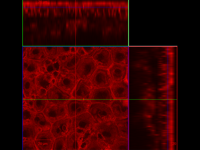 LMA2: Suprabasal layer within the epidermis of mtmg mouse ear (taken at 63x). red: tdTomato beta-actin. By Lauren M Adelaar, Gregory L Szeto