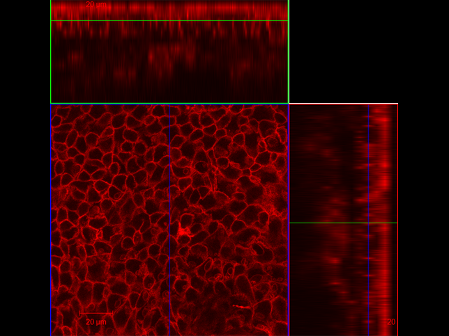 LMA3: Keratinocytes in epidermis of mtmg mouse (taken at 63x). red: tdTomato beta-actin. By Lauren M Adelaar, Gregory L Szeto
